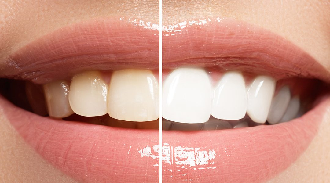Get to Learn the History of Tooth Whitening