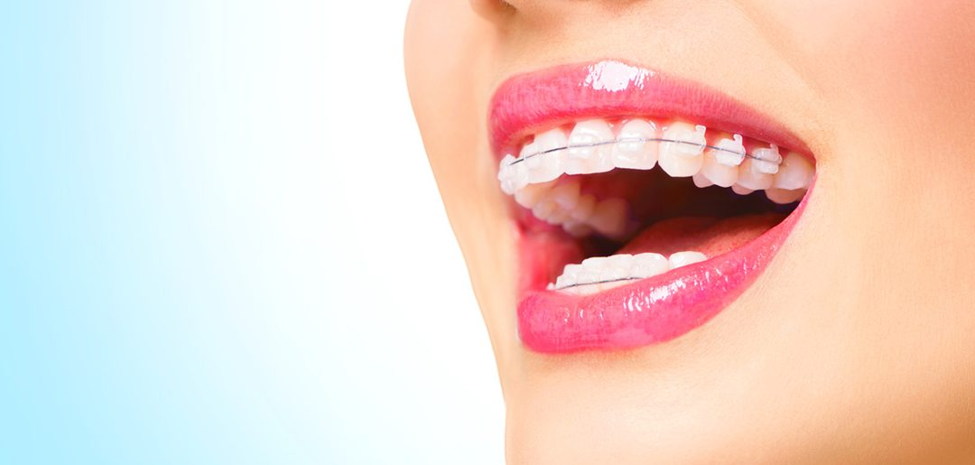 What You Learn About Braces at the Dental Hygienist School